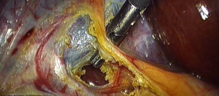 laparoscopic cholecystectomy essay Although laparoscopic procedures were performed in gynecology for many years, completion of the first laparoscopic cholecystectomy in 1985 was a contributing event in the development of medical robotic technology (the evolution.